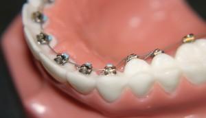 interior braces